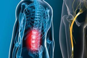 10 روش درمان «درد سیاتیک»